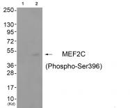 AP55825PU-S - MEF2C