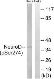 AP55826PU-S - NEUROD1