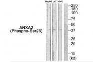 AP55852PU-S - Annexin A2 / ANXA2