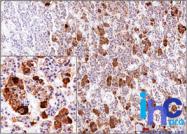 AM50155PU-S - Adrenocorticotropic Hormone (ACTH)