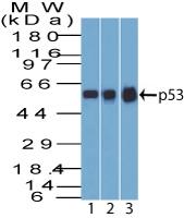 AM50177PU-N - TP53 / p53