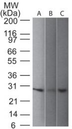 AM50184PU-S - UCHL1 / PGP9.5