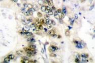 AP06082PU-N - Cyclin E1