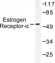 AP06111PU-N - Estrogen receptor alpha