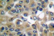 AP06154PU-N - Chorionic Gonadotropin (hCG)