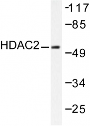 AP06157PU-N - HDAC2