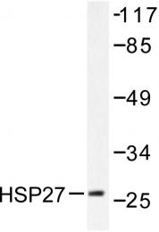 AP06172PU-N - HSPB1 / HSP27