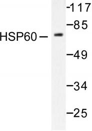 AP06174PU-N - HSP60