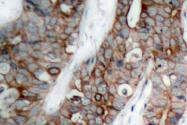 AP06182PU-N - CD61 / ITGB3