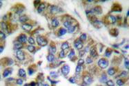 AP06195PU-N - Cytokeratin 14