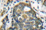 AP06205PU-N - Cytokeratin 8