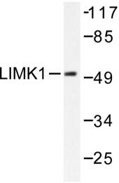 AP06209PU-N - LIMK1