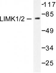 AP06210PU-N - LIMK1