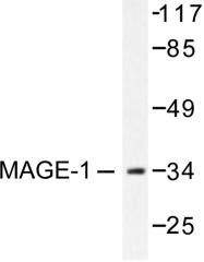 AP06212PU-N - MAGE-1
