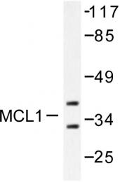 AP06215PU-N - MCL1