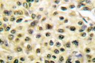 AP06216PU-N - MCM2