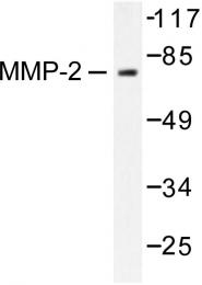 AP06231PU-N - MMP-2