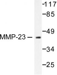 AP06232PU-N - MMP-23