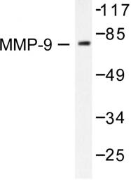 AP06236PU-N - MMP-9