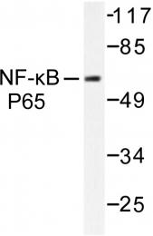 AP06248PU-N - RELA / NF-kB p65