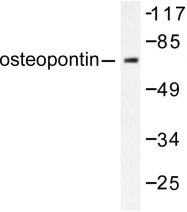 AP06258PU-N - Osteopontin / SPP1