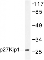 AP06264PU-N - CDKN1B / KIP1