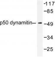 AP06265PU-N - Dynactin subunit 2