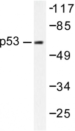 AP06267PU-N - TP53 / p53