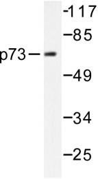 AP06273PU-N - Tumor protein p73 (TP73)