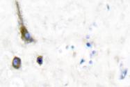 AP06289PU-N - KCNC2