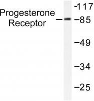 AP06291PU-N - Progesterone receptor