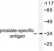 AP06294PU-N - Kallikrein-3 / PSA / KLK3