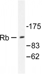AP06304PU-N - Retinoblastoma-associated protein / RB1