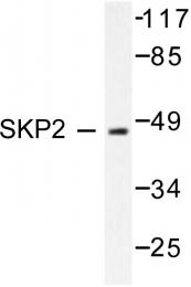 AP06317PU-N - SKP2 / FBXL1