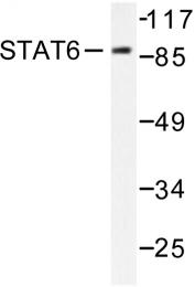 AP06333PU-N - STAT6