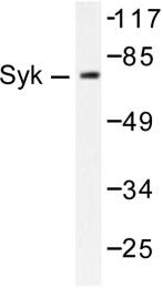 AP06335PU-N - SYK