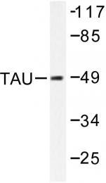 AP06343PU-N - MAPT / TAU
