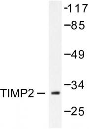 AP06355PU-N - TIMP2