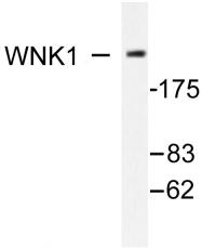 AP06363PU-N - WNK1