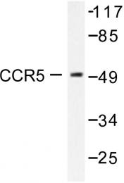 AP06378PU-N - CD195 / CCR5