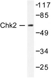 AP06380PU-N - CHK2