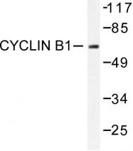 AP06381PU-N - Cyclin B1