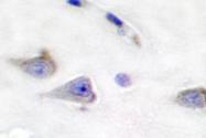 AP06383PU-N - DARPP32