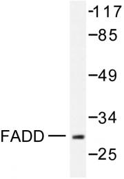 AP06388PU-N - FADD