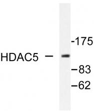 AP06393PU-N - HDAC5