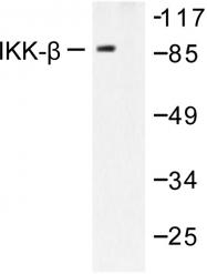 AP06396PU-N - IKBKB / IKKB