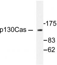 AP06404PU-N - BCAR1 / CRKAS