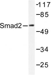 AP06413PU-N - SMAD2