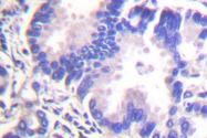AP06417PU-N - Gamma-Synuclein / SNCG