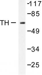 AP06420PU-N - Tyrosine 3-monooxygenase (TH)
